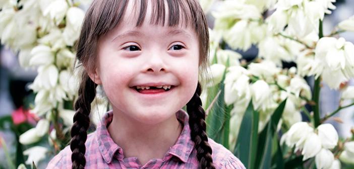 Photo of Down Sendromu Hastalık Değildir